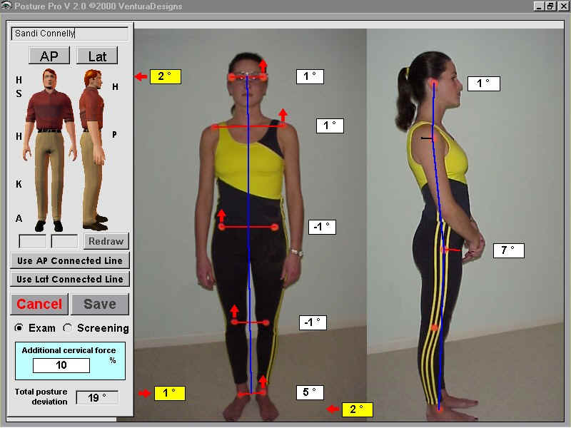 Posture Analysis Software